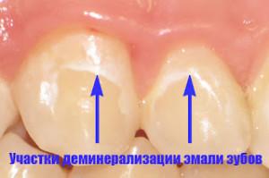 чистка-зубов.01