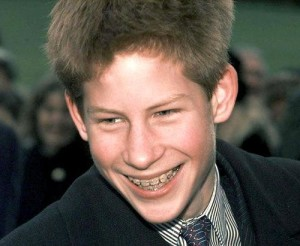 принц Гарри в брекетах