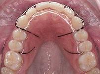 ретенционная пл во рту