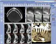 кт ретенция зуба