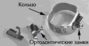 ортодонтическое кольцо и замок