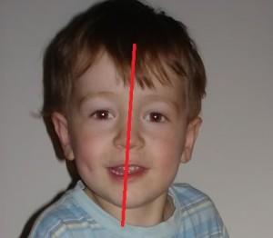 лицевая ассиметрия
