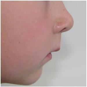 ortodonticheskie-plastinki-2