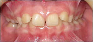 ortodonticheskie-plastinki-3