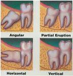 зубы 8