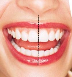 симметрия улыбки