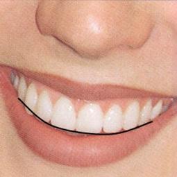 линия улыбки