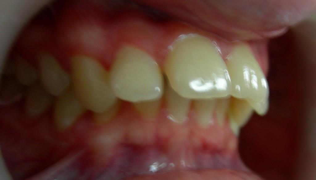 Протрузия верхних передних зубов это